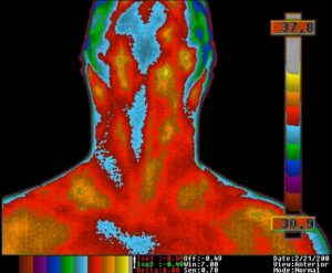 Thermal Images copyright The Thermogram Center