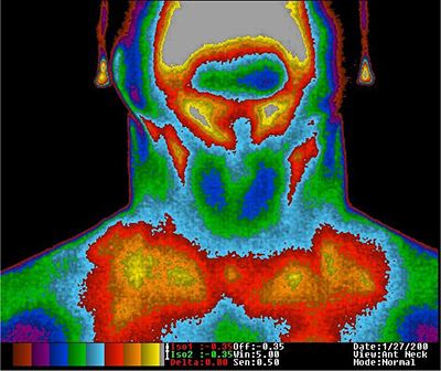 Thermal Image of a Thyroid copyright The Thermogram Center