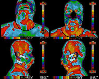 Tooth Socket Thermal Images Copyright The Thermogram Center