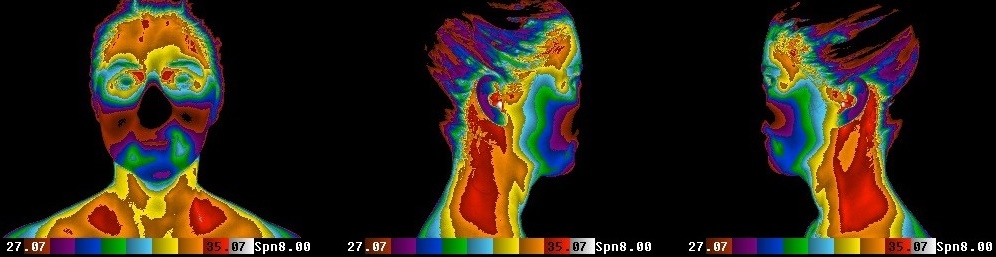 The Thermogram Center, Inc. Images Without Signs of Infection
