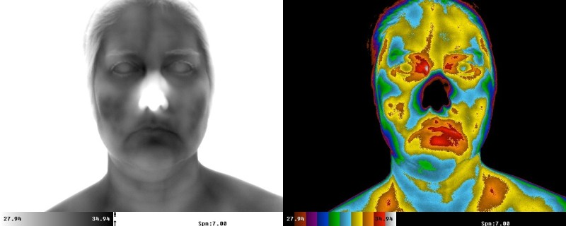 Microbial Infection as seen thermally image copyright The Thermogram Center