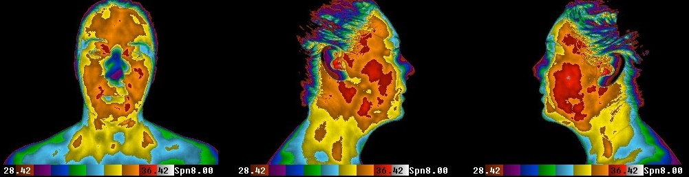 The Thermogram Center, Inc. Images - Extreme Case of Sinus (Candida) Infection