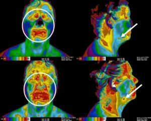 Worsening Thermal Findings